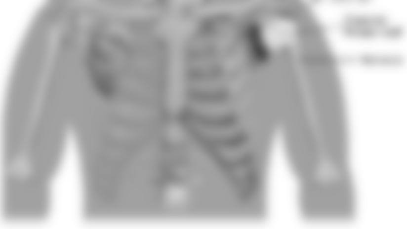 Acromioclavicular-joint-sprain